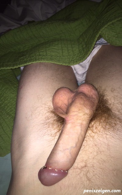 Tight beschneidung low The foreskin